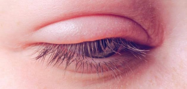 التهاب جفن العين وكيفية الحفاظ علي سلامة العين