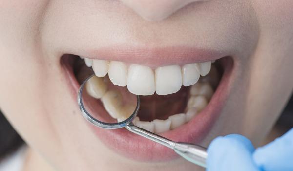 مضاعفات خراج الأسنان خطيرة .. بينها أضرار بالقلب