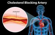 6 أعراض تدل على ارتفاع الكوليسترول في الدم
